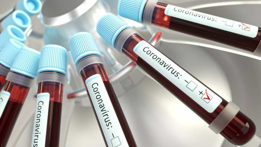 Coronaviruses research, conceptual illustration. Vials of blood in a centrifuge being tested for coronavirus infection.