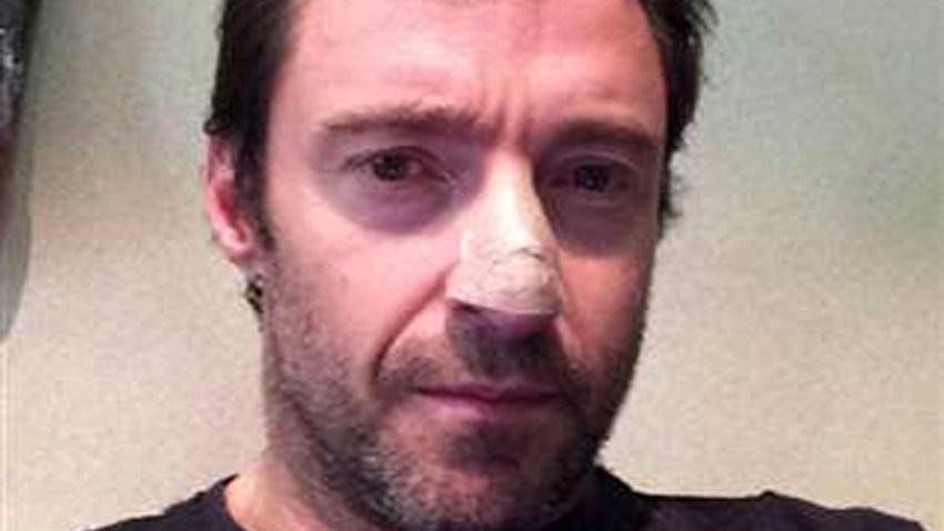 Jackman skin cancer