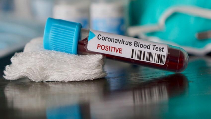Santa Clara County Employee Tests Positive For Coronavirus – NBC ...