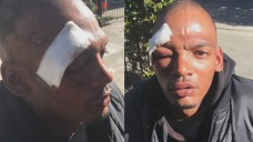 Man Beaten By Mob of Teens at Richmond BART Station