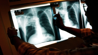 Potential Tuberculosis Exposure at VA Hospital in Palo Alto