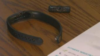Milwaukee Woman Says Fitbit Exploded and Burned Her Arm