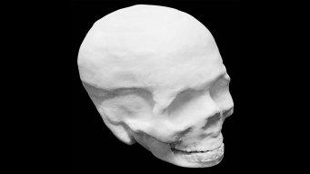 3D-Printed Artificial Bones Could Help Heal Injuries