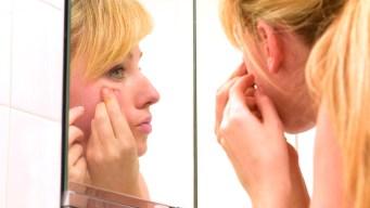 Battling Adult Acne