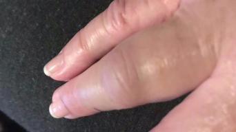 Woman Claims Santa Clara Deputy Broke Her Hand