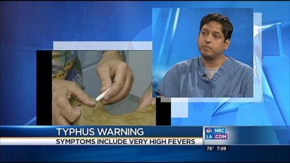 Typhus Warning: Dr. Sanjeev Seth Explains