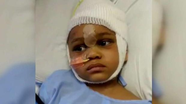 [BAY] 4-Year-Old Boy Improves After Accidental Shooting