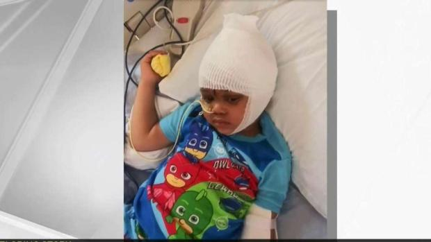 [BAY] Boy Who Accidentally Shot Himself Recovering
