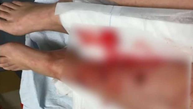 [BAY] Dog Attacks Wag Hotel Employees in Santa Clara
