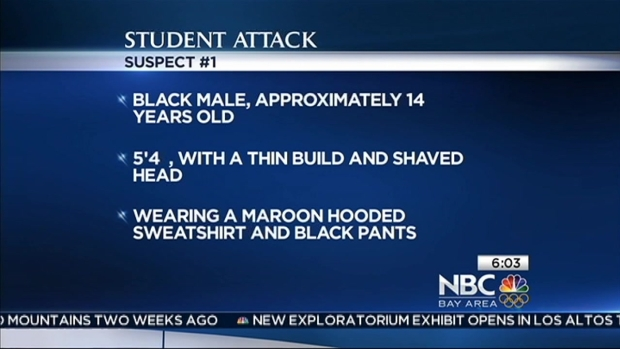 [BAY] Police: 14-Year-Old Attacked Cal Student