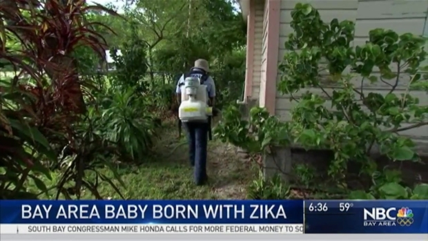 [BAY] Baby Born With Zika-Related Defects at Berkeley's Alta Bates: Sources