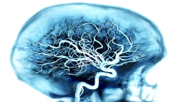 [BAY] 7 Things To Fight Alzheimer's Disease