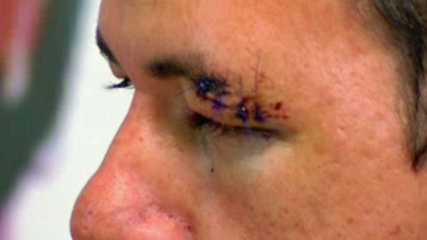 Man: Border Agents Beat Me for No Reason