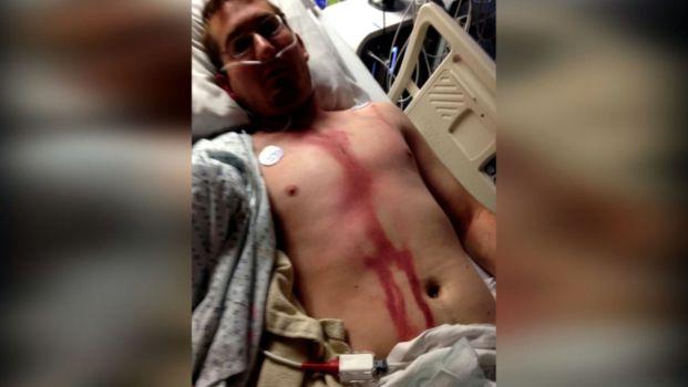Idaho Man Survives Lightning Strike