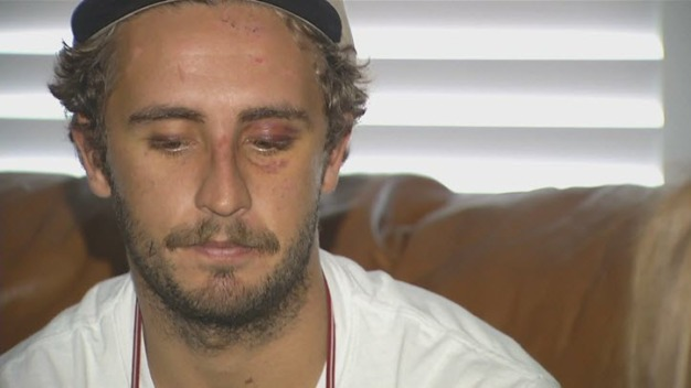East Bay Man Beaten After Confronting Noisy Group