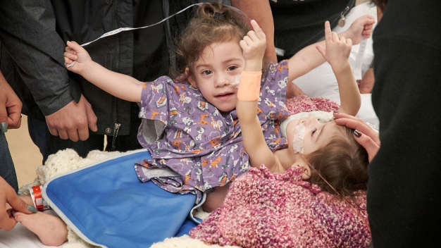 Conjoined Twins Separated After 17-Hour Surgery at Stanford