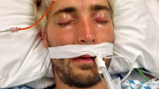 San Francisco General Hospital Officials Ask for Help Identifying Patient