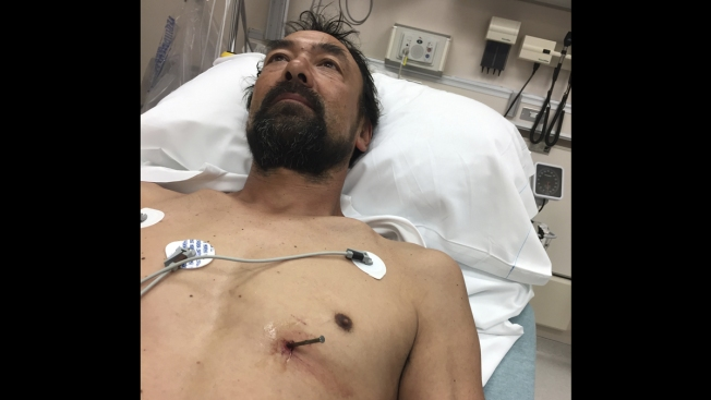 'Twitching With Every Heartbeat': Man Who Drove Himself to Hospital With Nail in His Heart Heads Back to Work