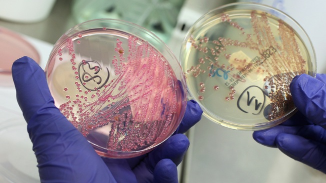 E. Coli Outbreak Sickens 72 People in 5 States, CDC Says