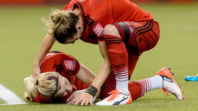 World Cup Collision Sparks More Concern Over Concussions