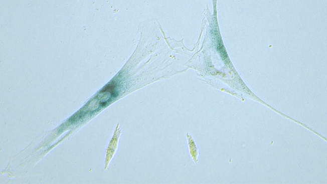 Cells That Refuse to Die May Play Role in Bodies Aging
