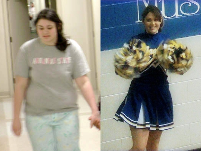 Teen Weight Loss: Going Under the Knife