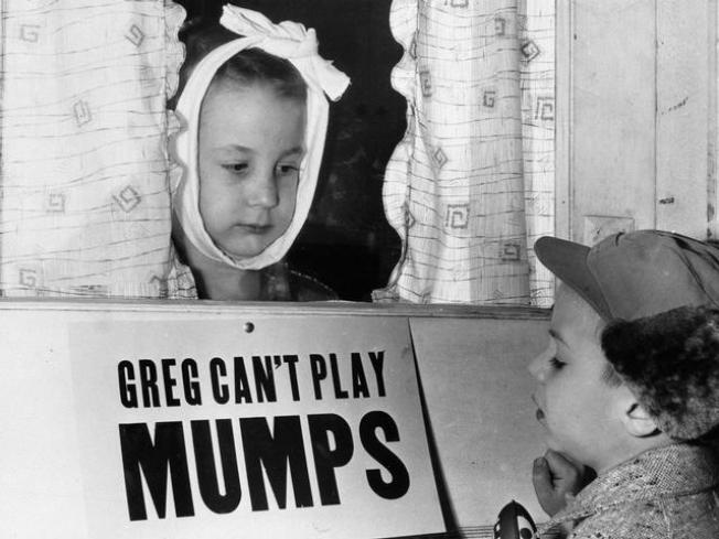 Mumps Outbreak at Cal
