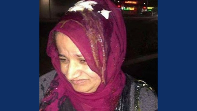 Instagram Post Shows Woman With Hijab Egged, San Leandro Police Investigating