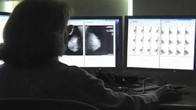 Radiation with Chemo May Cut Breast Cancer Relapse Risk
